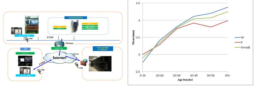 遠隔画像診断ネットワーク(左)と画像データから得られた顎骨の皮質骨(骨塩量)変化