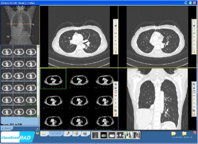 遠隔画像診断の画面